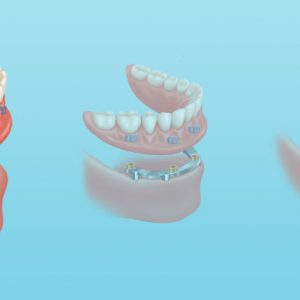 diagram of Removable mini implant dentures on Zest locators utilizing 2-6 dental implants