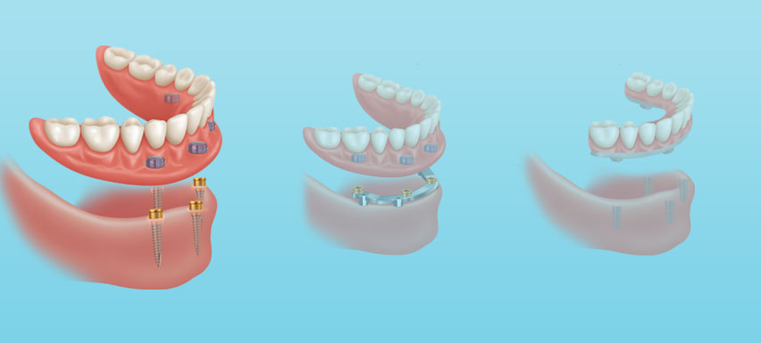 Retained dental implant