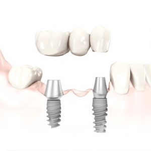 3 unit dental implant bridge