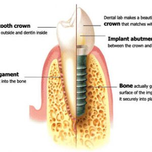 cross section diagram of a tooth implant