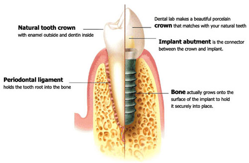 Diagram of single tooth implant